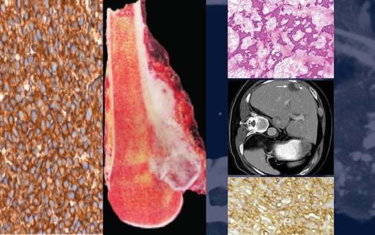 images from Sarcoma Oncology: A Multidisciplinary Approach